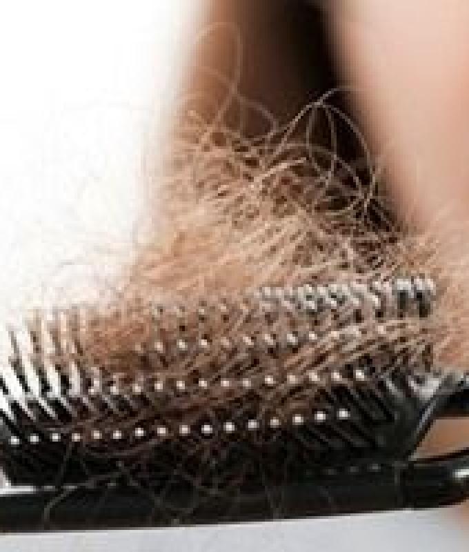 5 أسباب تزيد تساقط الشعر.. منها الإجهاد والمواد الكيمائية الضارة