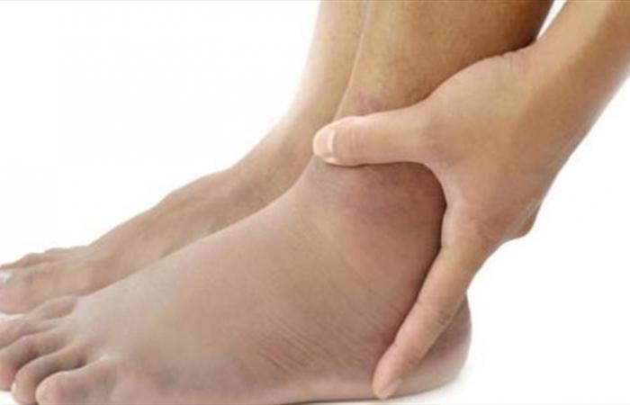 إليك طرق مفيدة للتخلص من تورم القدمين