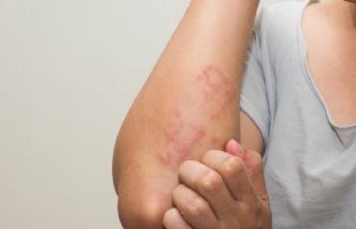5 أطعمة تحميك من مشاكل جفاف الجلد فى الشتاء.. تعرف عليها