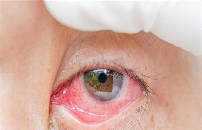 أبرزها العيون الوردية.. احترس من أعراض كورونا الجديدة