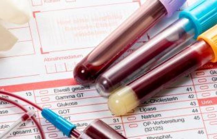 اختبار الأجسام المضادة للسكرى يحدد الإصابة بسكر النوع الأول