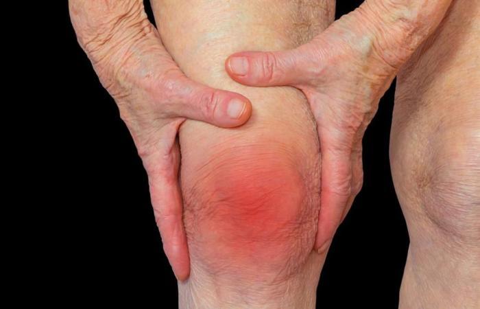 التهاب المفاصل.. الألم والتيبس أعراض رئيسية