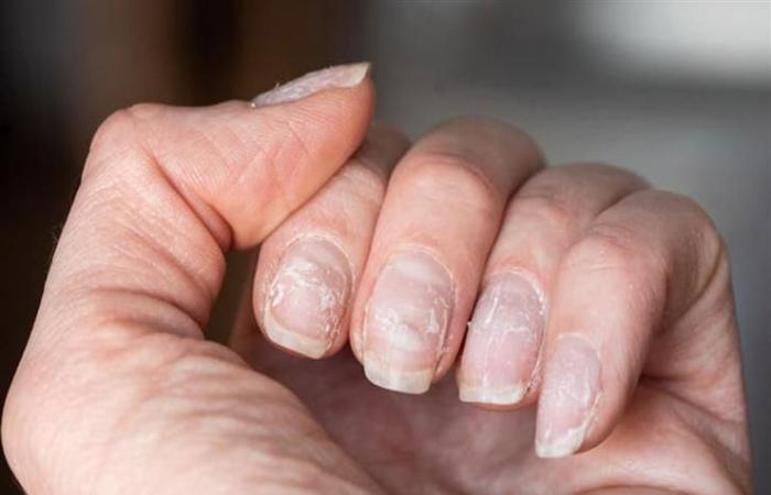 احذر العلامات البيضاء على الأظافر قد تهدد الحياة
