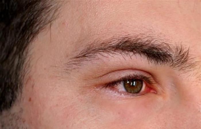 ما أسباب التهاب العين؟