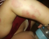 في طرابلس - كدمات ظاهرة على جسم ابن السنة والشهرين... تعرض للعنف في الحضانة والوالد يؤكد: ابني بأمان